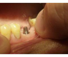 IMPLANTES DENTALES NACIONALES EN PATERNAL